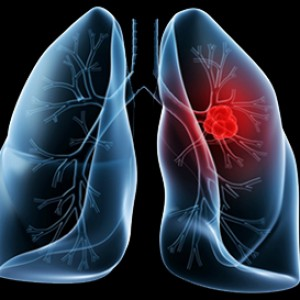 Research paper on lung cancer